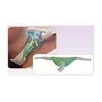 Tracheostomy Mask, Bariatric, Adult, Velcro Attachment Tabs