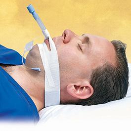 Endotracheal Tube Securing Tape, TrachTape, Cloth, Adhesive, PadLoc Foam